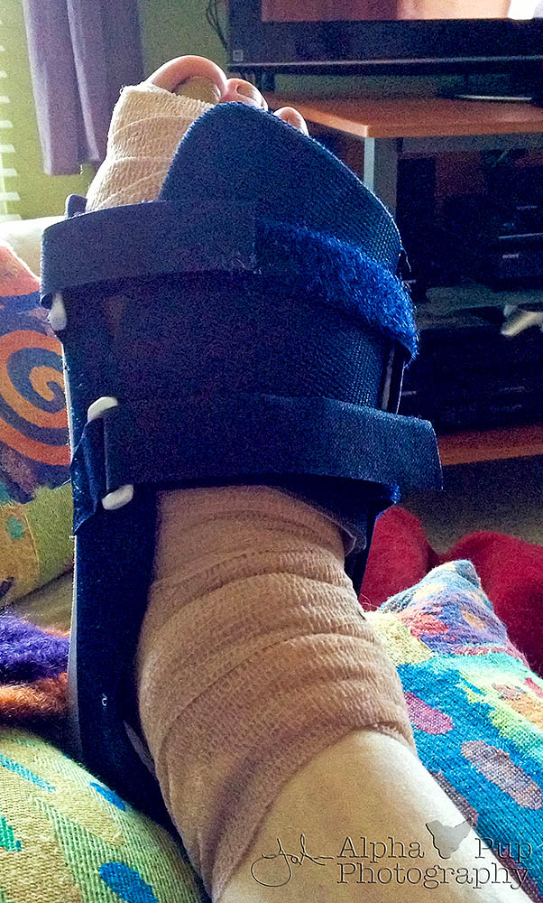 Foot Surgery